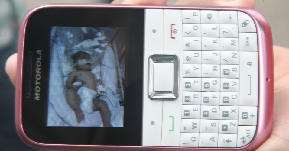 Israel Abraão Amaral Lopes exibe imagem de seu filho no celular que teve leite injetado na veia ao invés de soro. A má administração foi feita por uma enfermeia do Hospital da Baleia em Belo Horizonte (Minas Gerais)