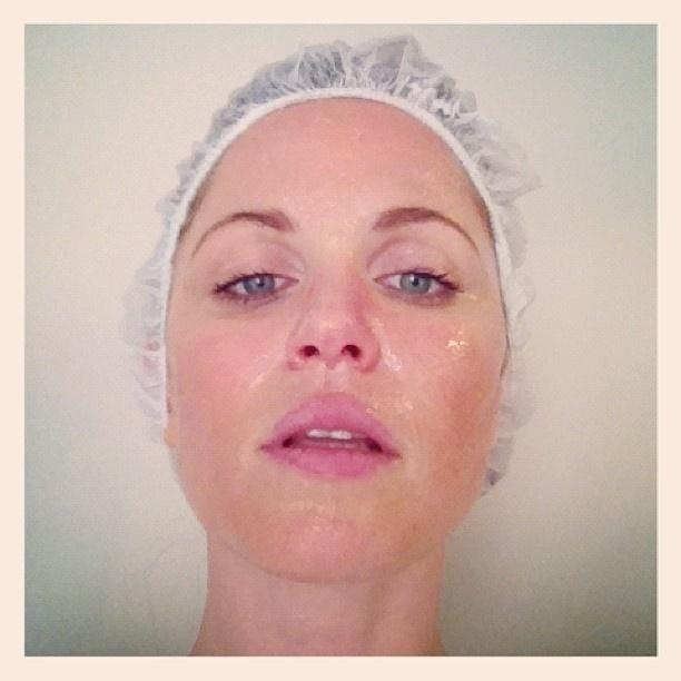 Susana Werner posta foto antes de fazer tratamento a laser no rosto (18/4/12)
