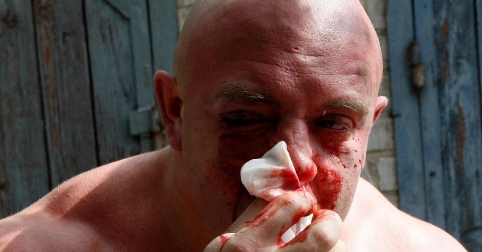 20.mai.2012 - Svyatoslav Sheremet, líder da organização Gay-Forum, limpa ferimentos após ser agredido por pessoas não identificadas em Kiev, na Ucrânia. Agressores fugiram quando perceberam que estavam sendo fotografados
