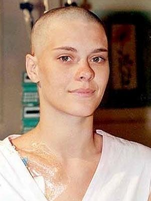 """Carolina Dieckmann raspou os cabelos pela personagem Camila, de """"Laços de Família"""". Na trama a jovem sofria de leucemia (12/6/12)"""