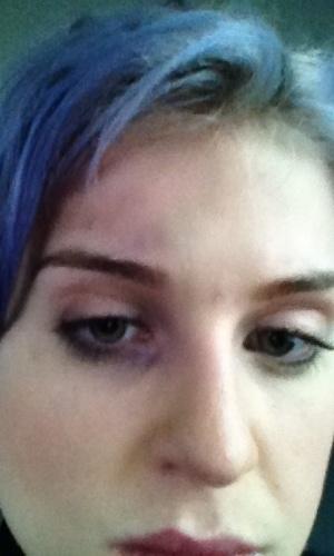 """Kelly Osbourne publicou em seu perfil no Twitter uma foto em que aparece com seu olho roxo. A moça foi atingida quando o passageiro que estava em sua frente em um voo reclinou a poltrona e a tela de TV do assento bateu em seu olho direito. """"Muito obrigada a Delta Airlines pelo olho roxo"""", escreveu (7/7/12)"""