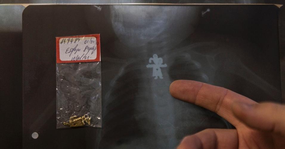 27.jul.2012 - Médico mostra Pingente de bonequinha engolido por um bebê de 8 meses que foi atendido no Hospital Municipal Souza Aguiar, no centro do Rio de Janeiro