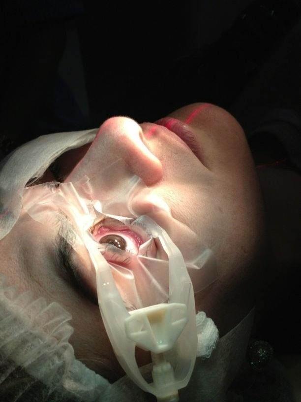 Ceará divulga imagem da cirurgia de correção de miopia de Mirella (3/8/2012)