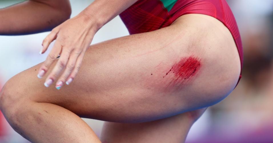 Atleta do triatlo sofre queda durante disputa em Londres e apresenta ferimento na perna