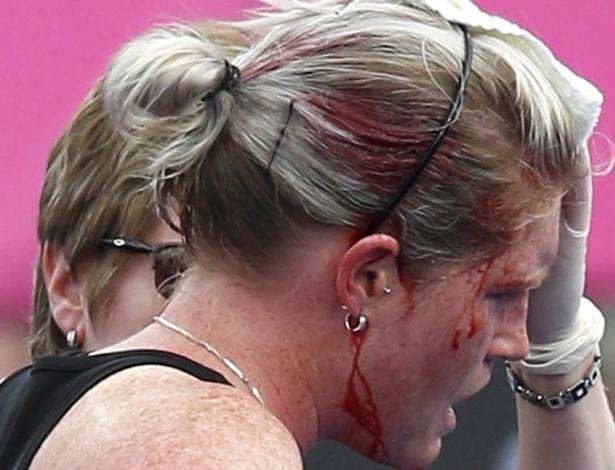 Katie Glynn, da Nova Zelândia, deixa o campo sangrando após ser atingida na cabeça na semifinal feminina do hóquei na grama contra a Holanda