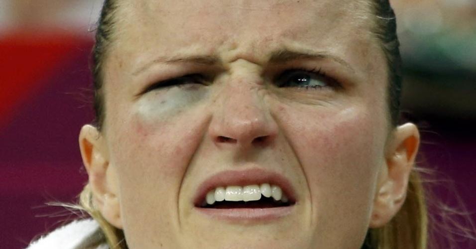 A australiana Jennifer Screen ficou com o olho roxo na derrota para as norte-americanas na semifinal do basquete feminino em Londres