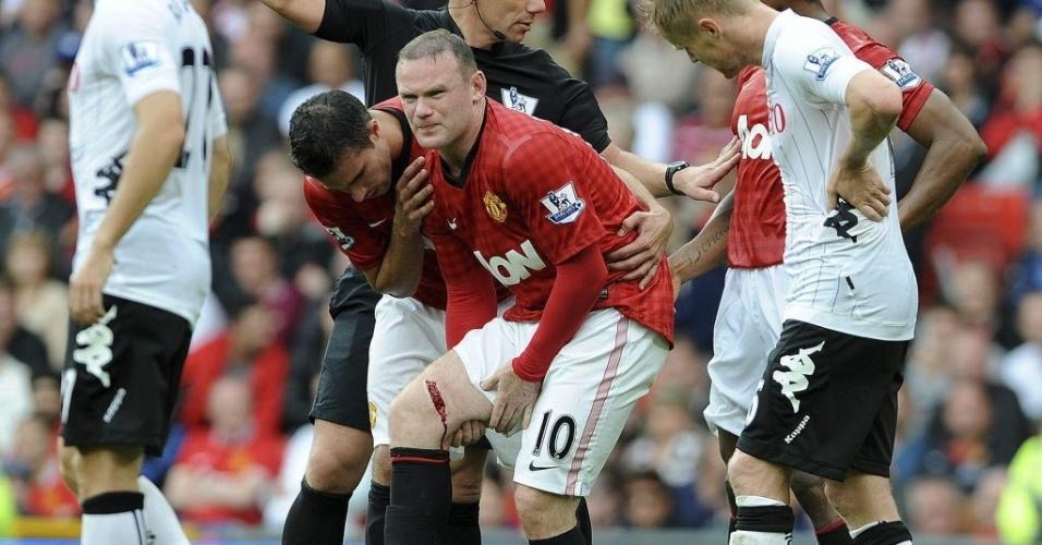 25.ago.2012 - Rooney mostra corte em sua perna após entrada dura durante partida contra o Fulham