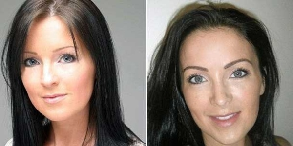 A britânica Claire Culverwell antes (à esq.) e depois da cirurgia de implante de sobrancelha