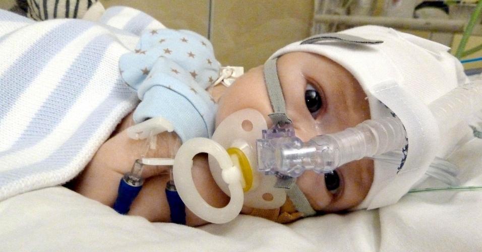 19.set.2012 - Um casal do País de Gales conseguiu a cura para seu bebê, que sofria de uma malformação rara, após solicitar aos médicos que ele recebesse um tratamento descoberto por eles na internet