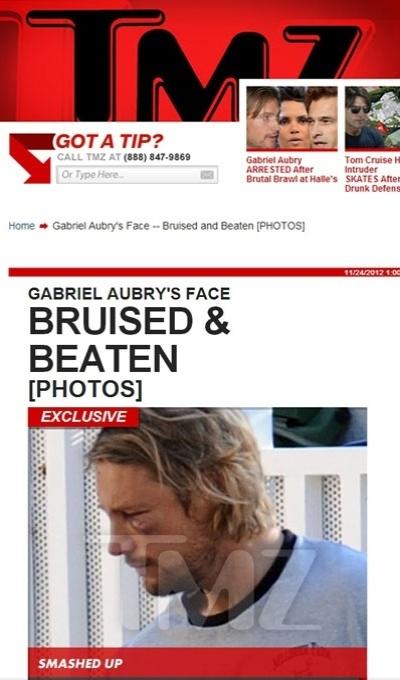 Gabriel Aubry aparece com o olho roxo após se envolver em uma briga com o noivo da ex-namorada, Halle Berry (24/11/12)