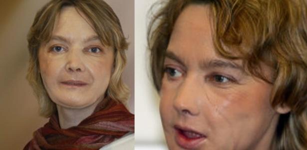 Isabelle Dinoire diz que pensa constantemente na mulher morta cuja face recebeu no transplante - Getty Images/AFP