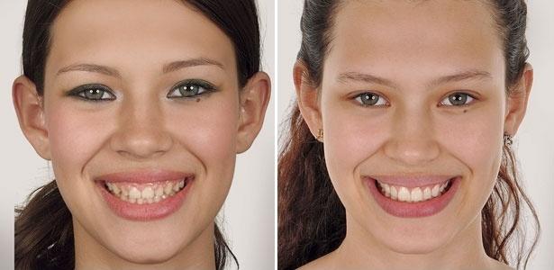 """A modelo Michele Carvalho antes e depois de colocar facetas nos dentes tortos, pequenos e separados: """"Em 30 dias ganhei um sorriso novo e melhorei minha autoestima."""" - Divulgação"""