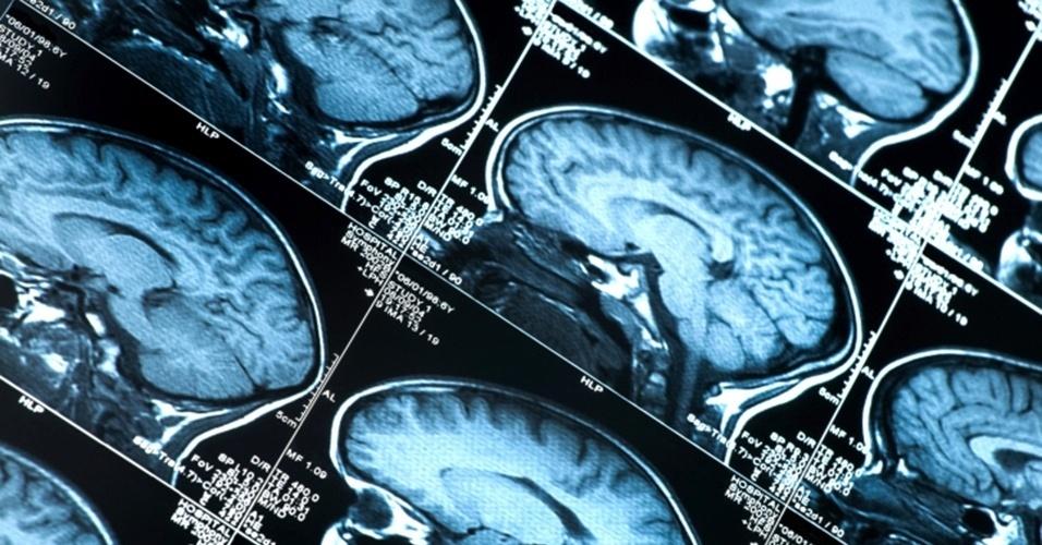 8.jan.;2013 - Ser uma pessoa otimista pode trazer bons resultados à saúde - como diminuir os níveis de estresse e  ansiedade - tanto quanto revelar uma falha no cérebro, segundo um estudo britânico feito com 19 voluntários. Pesquisadores da University College London perceberam que a atividade no lobo frontal do cérebro aumentava bastante quando ele recebia uma resposta melhor do que a esperada. Quando alguém recebia um resultado pior do que o previsto, quase não havia alteração no lobo frontal, como se o participante tivesse ignorado a nova evidência. O resultado demonstra que a nossa incapacidade de alterar as previsões otimistas diante da realidade (no caso, as respostas conflitantes) é gerada, ainda, na forma como o cérebro processa as informações recebidas
