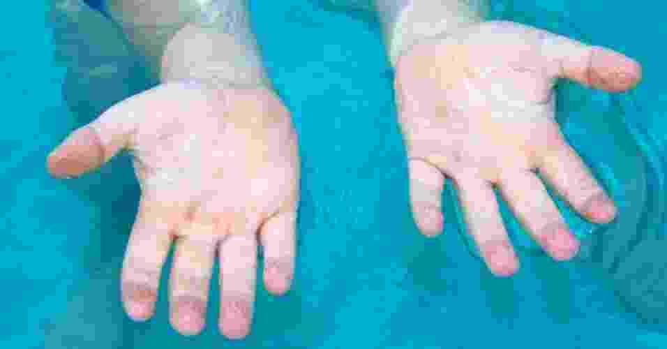 9.jan.2013 - Cientistas da Universidade de Newcastle, no norte da Inglaterra, fizeram um experimento para investigar a razão de os dedos ficarem enrugados na água. Segundo eles, as rugas tornam mais fácil o manuseio de objetos embaixo d'água ou de superfícies molhadas em geral, função evolutiva que pode ter sido vantajosa quando os primeiros homens procuravam por alimentos na natureza - iStockphoto/Getty Images