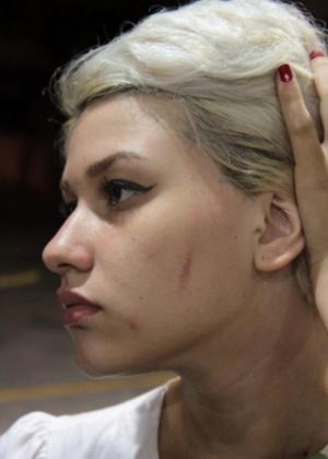 9.jan.2013 - Manifestante do Femen Brazil Sara Winter mostra ferimento em seu rosto; ela alega que a marca foi causada pelo sapato de um segurança do shopping que pisou em seu rosto