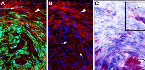 Estudo mostra bactéria de hanseníase transformando neurônios em células-tronco e musculares  - Divulgação