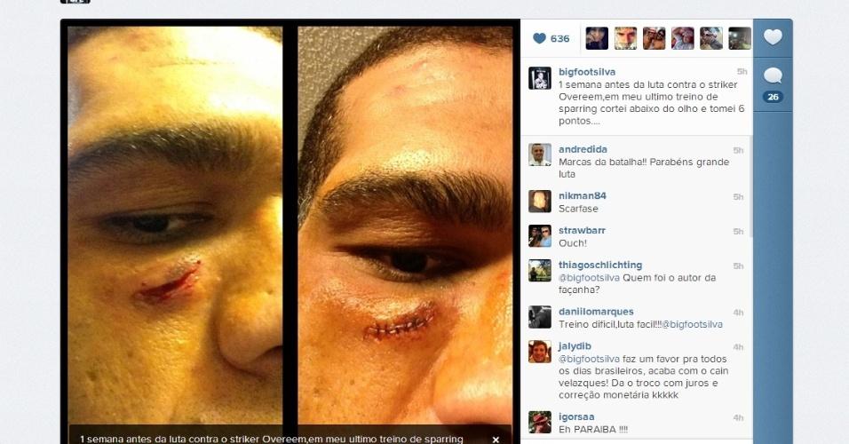 07.fev.2013 - Antonio Silva, o Pezão, exibe corte e pontos tomados na face, antes da vitória contra Alistair Overeem no UFC 156