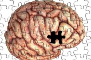 Brasileiros lideram pesquisa que busca causa e tratamento para alzheimer