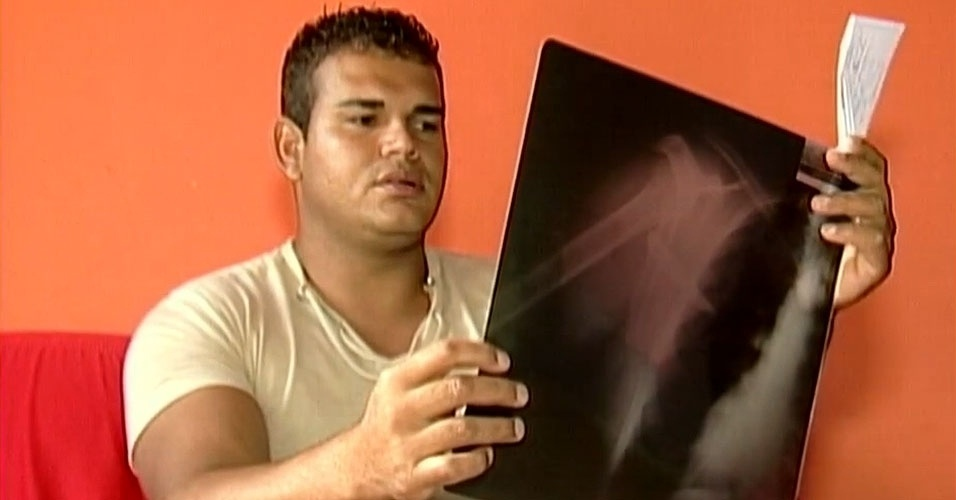 19.fev.2013 - O pedreiro Claudinei Geraldo da Silva de 26 anos levou um susto ao fazer um exame de raio-X na última quinta-feira (14) em Araxá, 363 quilômetros de Belo Horizonte. Ele descobriu uma lâmina de uma faca de aproximadamente 10 centímetros alojada no tórax. Silva conta que sente dores desde novembro, mês em que foi roubado ao sair de um bar e foi agredido