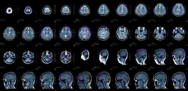 O hemisfério esquerdo está mais ligado ao raciocínio lógico e à linguagem; o direito, às emoções - Thinkstock