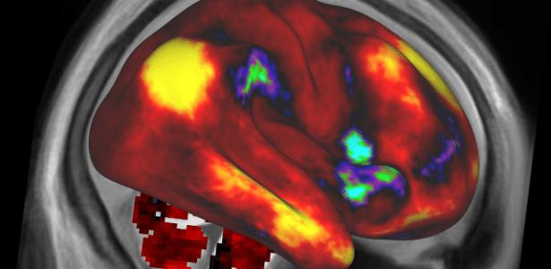 O Projeto Conectoma Humano publicou as primeiras imagens mais detalhadas do cérebro humano, além de informações sobre os traços de personalidade e habilidades intelectuais da mente - NIH/Human Connectome Project