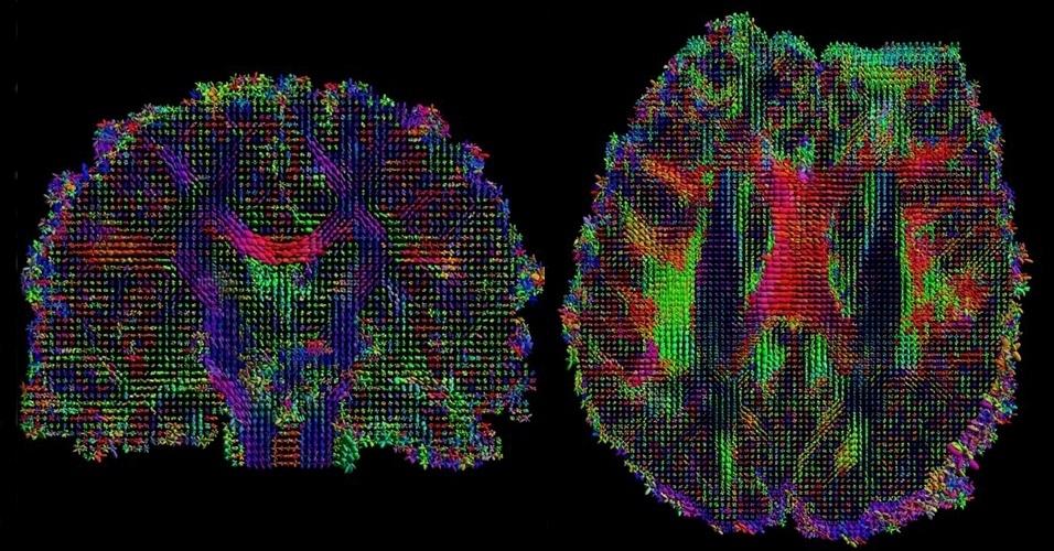 6.mar.2013 - Planos coronal (à esquerda) e axial (à direita) mostram os caminhos neurais dentro do cérebro - o tensor é mostrado com forma de uma elipse na imagem 3D