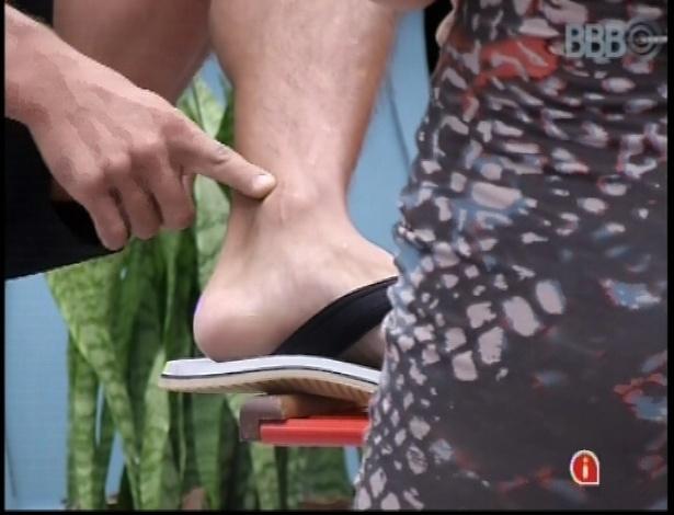 9.mar.2013 - Falso brother argentino, Miguel mostra a cicatriz e os pinos que teve que colocar no pé após cair de um telhado