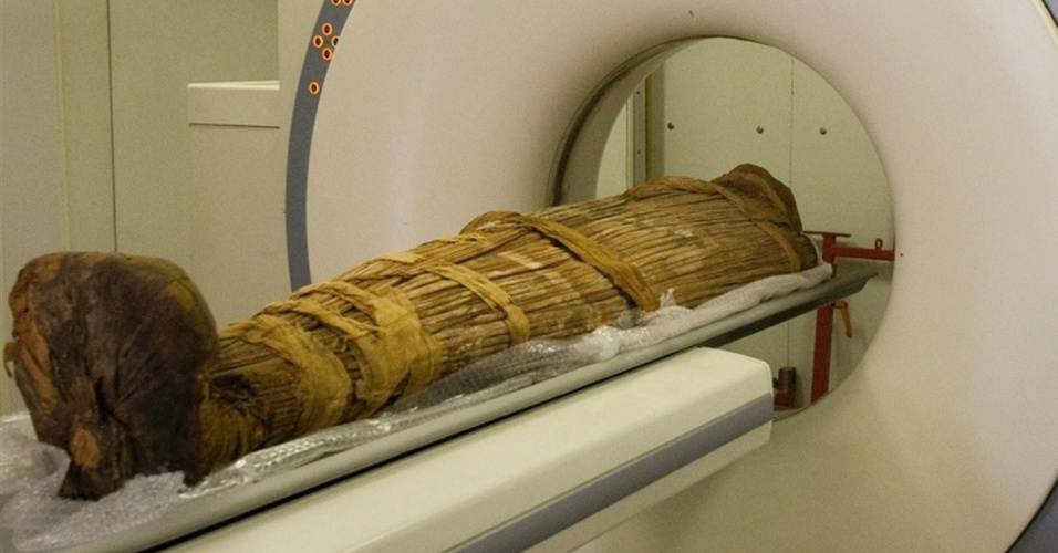 """11.mar.2013 - Múmia de Hatiay, um escriba egípcio de 40 a 50 anos, que viveu no Novo Reinado (de 1570-1293 a.C.) e que foi encontrada perto de Luxor, mostra que os humanos daquela época já sofriam de arteriosclerose, doença relacionada até então com o estilo de vida moderno. Ao todo, 137 múmias de 4 mil anos de diferentes lugares do mundo foram analisadas em pesquisa da revista """"The Lancet"""". Mais de um terço das múmias examinadas com tomografia axial computadorizada (TAC) - especificamente 47, 34% - mostravam sinais de calcificação vascular, causa da arteriosclerose, hoje associada à obesidade, ao tabaco e à falta de exercícios"""