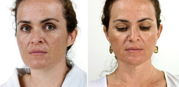 A hidroquinona, popular no tratamento de manchas de pele, está com os dias contados  - Thinkstock