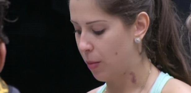 17.mar. 2013 - Nasser dá chupão no pescoço de Andressa e casal exibe marcas roxas pelo corpo.