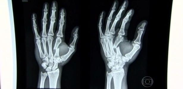Raio-x mostrou dedo quebrado de Yan Cabral, ex-lutador do time Werdum