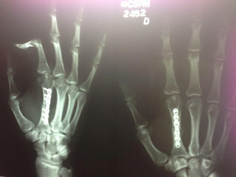 Yan Cabral mostra como ficou sua mão após uma fratura no TUF, problema que o tirou do reality show, mesmo vencendo sua luta