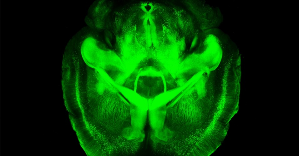 10.abr.2013 -Imagem renderizada em três dimensões mostra cérebro transparente criado por pesquisadores da Universidade de Stanford para estudar melhor o órgão sem dissecção e com todos os neurônios e estruturas moleculares