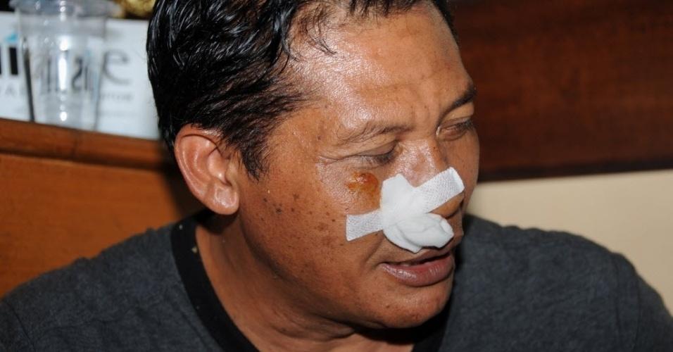 13.abr.2013 - Passageiro ferido recebe cuidados médicos após pouso de um avião no mar ao lado do aeroporto internacional de Bali, na Indonésia. Ninguém morreu no acidente, cuja causa ainda é desconhecida