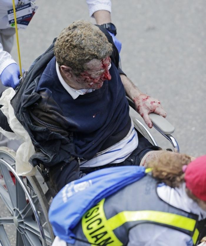 15.abr.2013 - Homem de cadeira de rodas fica ferido após explosões ocorridas próximas à linha de chegada da Maratona de Boston