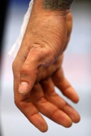 28. abr.2013 - Detalhe da lesão na mão de Yancy Medeiros