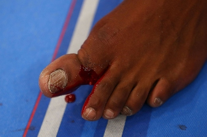 28.abr.2013 - Detalhe do dedo quebrado de Jon Jones após a luta contra Chael Sonnen no UFC 159