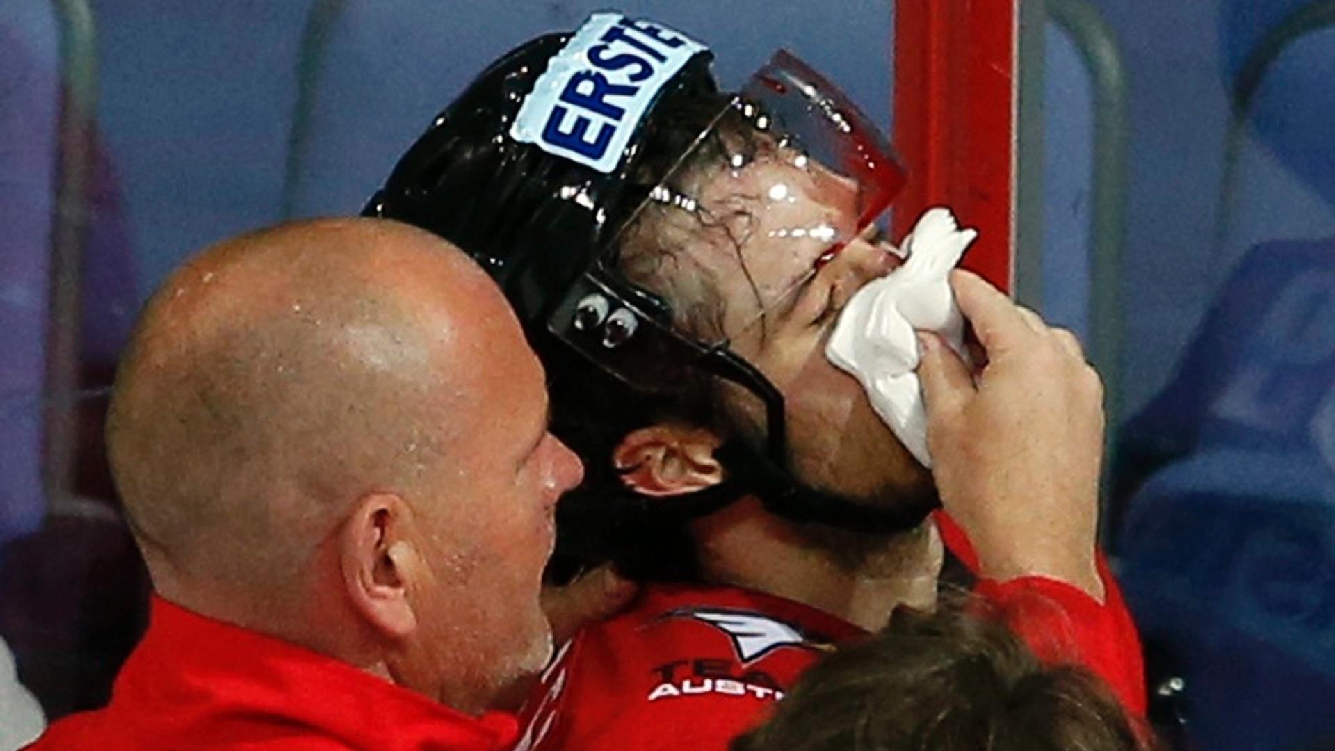 10.mai.2013 - Raphael Herburger, da Áustria, recebe atendimento após apanhar durante partida contra a Eslováquia, pelo Mundial de hóquei no gelo