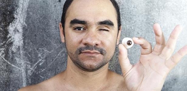 O fotógrafo Sérgio Silva, 33, que ficou cego após ser atingido por bala de borracha em 2013