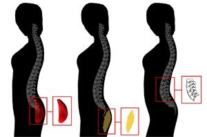 Homens preferem mulheres com curvatura acentuada na coluna lombar, independente do tamanho do glúteo (crédito: Universidade do Texas em Austin)