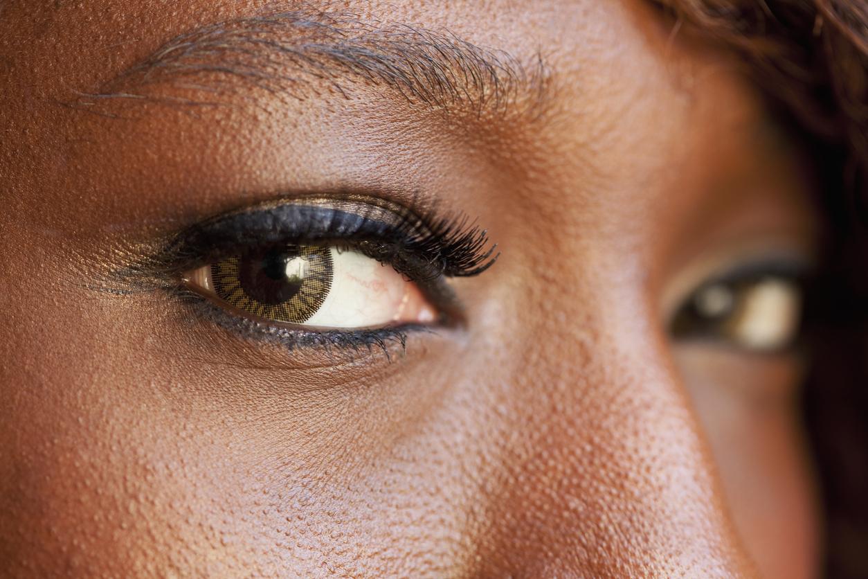 c5aa919d0 Pessoas negras são grupo de risco para a pressão intraocular alta. Crédito:  iStock