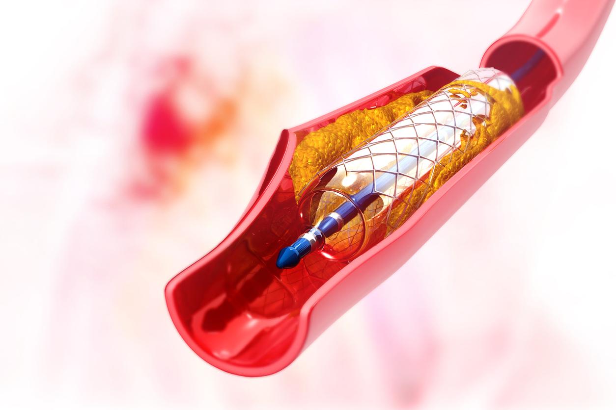 prostata stent