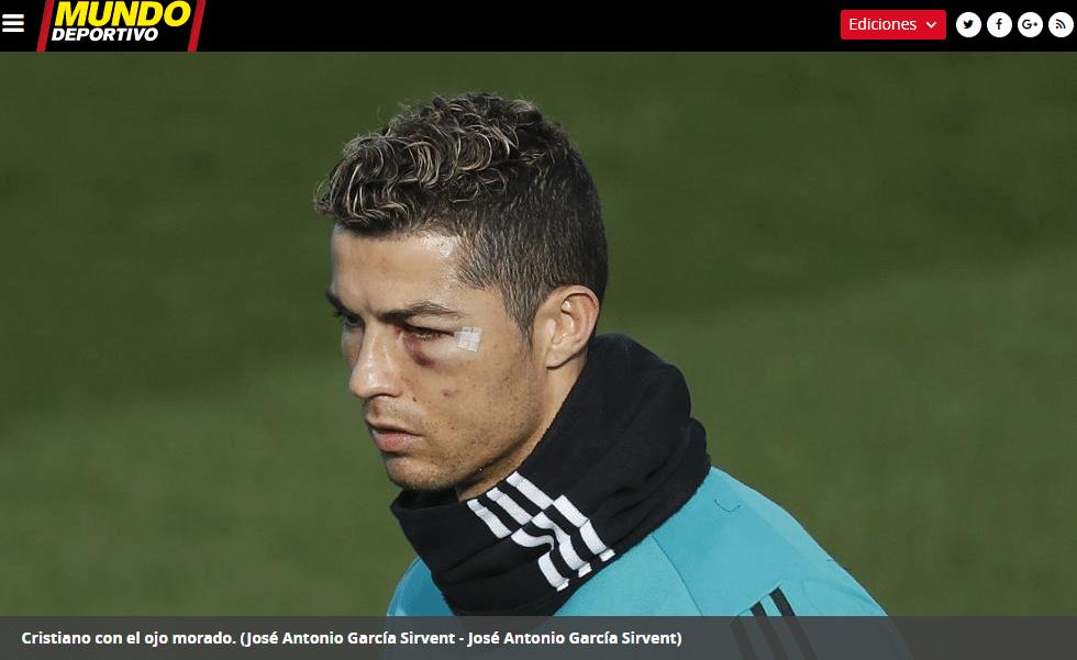 4582bfb212dca Olho de Cristiano Ronaldo segue inchado e roxo dois dias após choque ...