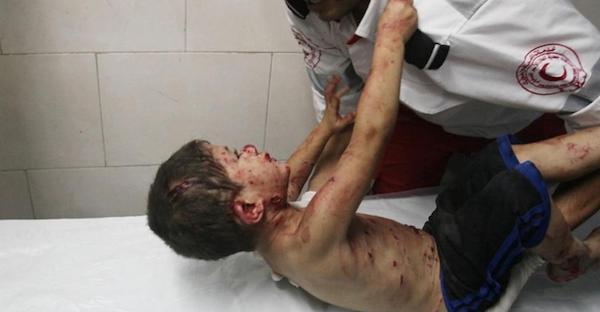 Menino palestino se agarra a um paramédico em Gaza após bombardeio (Apa Images/REX/REX USA)