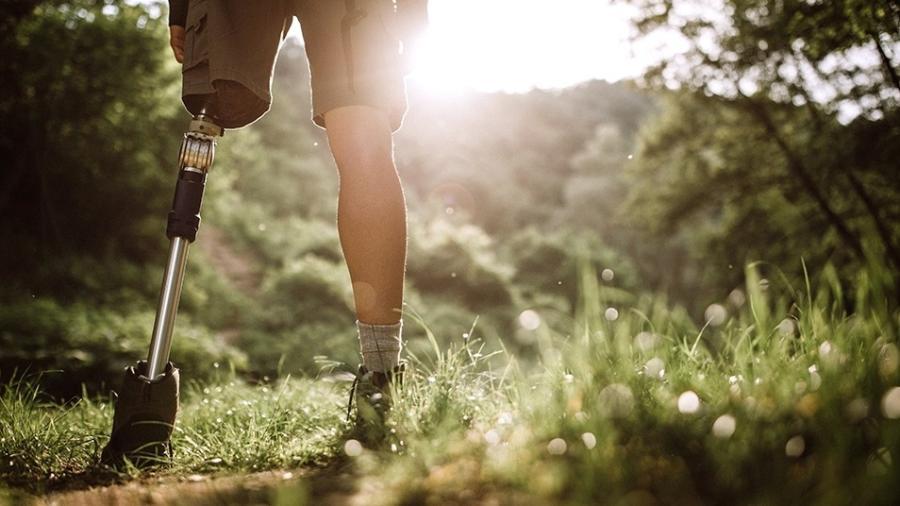 Imagem meramente ilustrativa; lista inclui próteses endoesqueléticas transfemurais (próteses para pernas) - Pekic/iStock