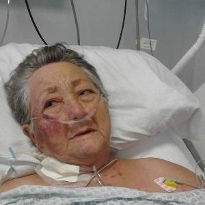 A idosa Thereza de Jesus Garcia, 78, que diz ter sido agredida na UTI no Hospital do Servidor Público Municipal de São Paulo