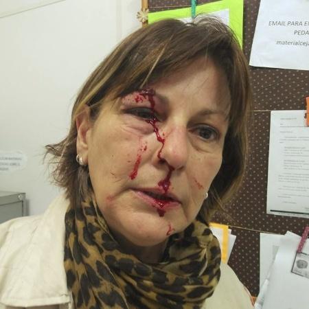 21.ago.2017 - A professora Marcia Friggi relatou em suas redes sociais a agressão que sofreu de um aluno da rede pública, em Santa Catarina - Reprodução/Facebook