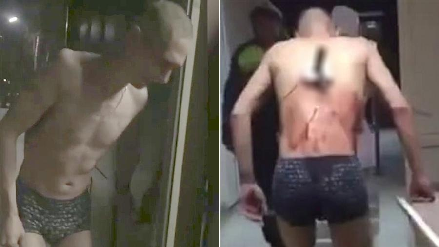 Homem tenta fugir de médicos com faca cravada nas costas na Rússia