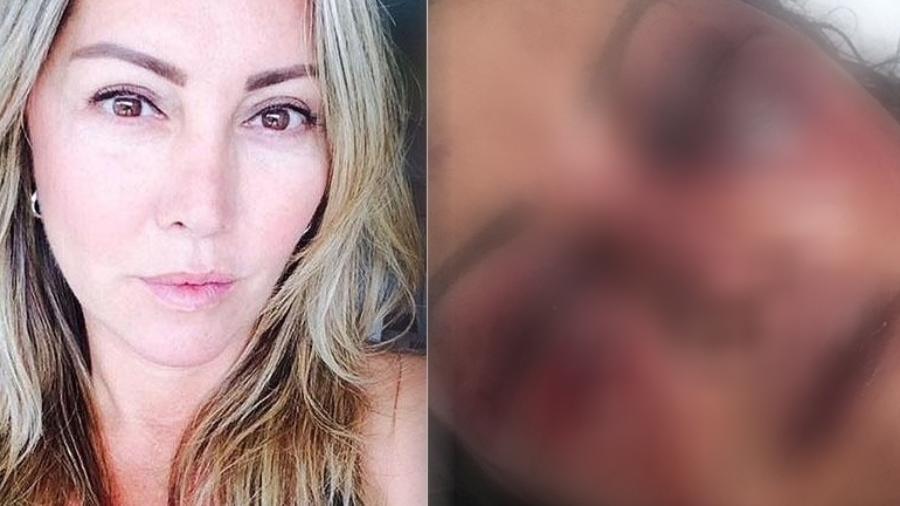 Elaine Caparróz ficou desfigurada após apanhar de homem que encontrou pela 1ª vez - Reprodução/Facebook e Reprodução/Instagram/Kyra Gracie
