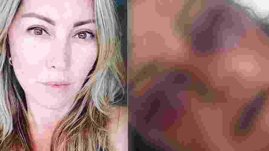 Reprodução/Facebook e Reprodução/Instagram/Kyra Gracie